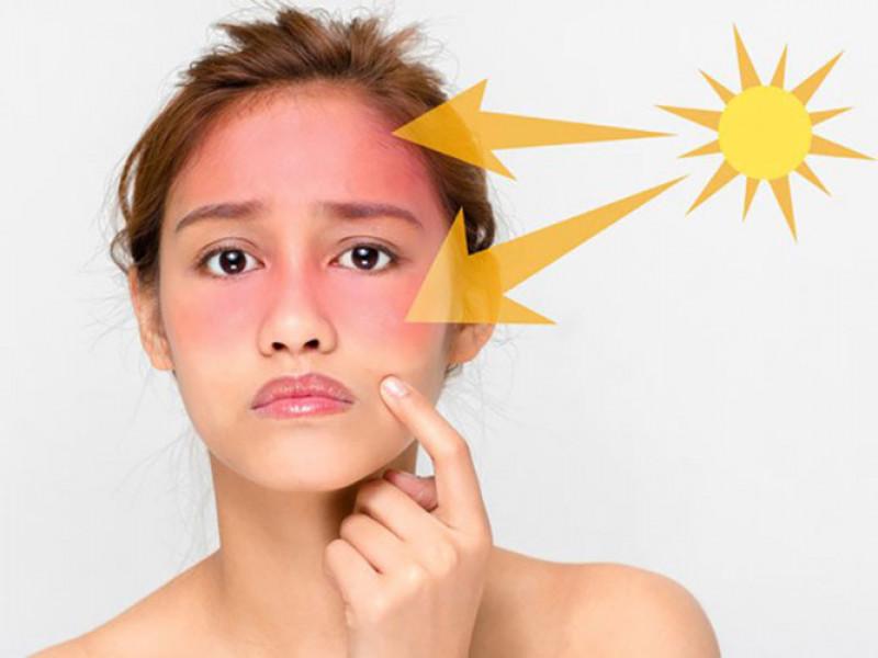 Ánh nắng mặt trời có tác hại cho da