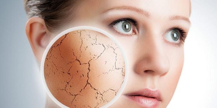 nguyên nhân gây lão hóa da và cách chống lão hóa da mặt