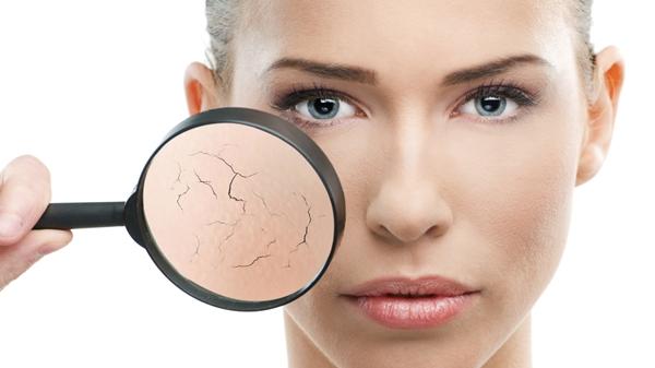 Da khô là một trong những biểu hiện của lão hóa da
