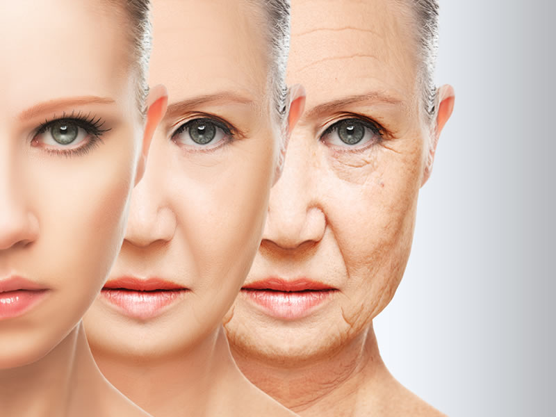 Những nếp nhăn, da chùng là biểu hiện của lão hóa da