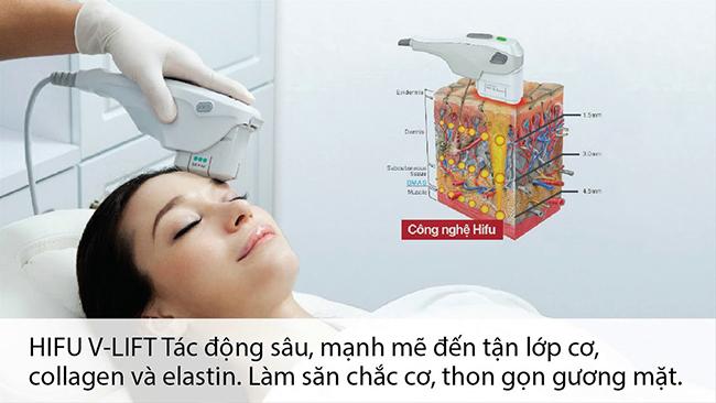 so-sanh-hifu-va-rf-cong-nghe-lam-dep-nao-tot-hon_1