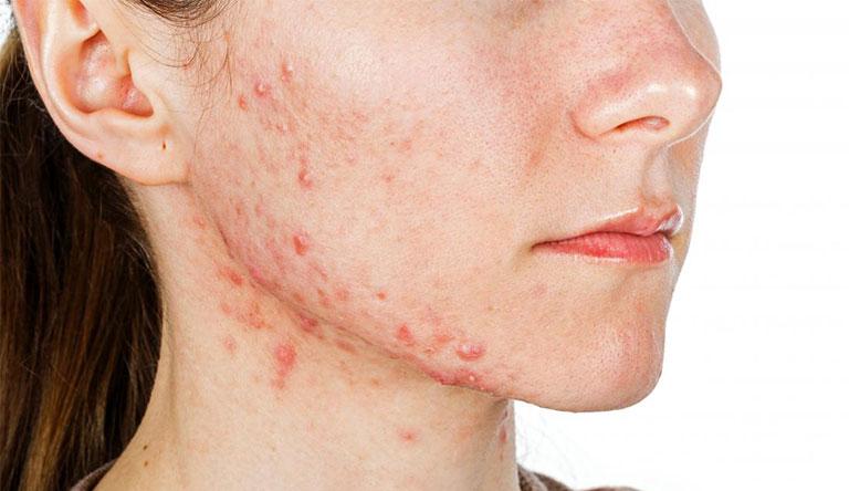 Da mặt tự nhiên nổi nhiều mụn phải làm sao